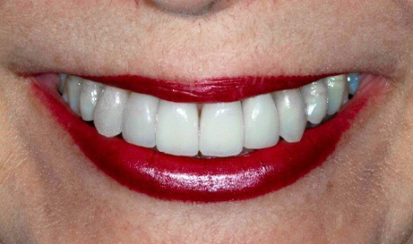 Brilliant healthy smile after teeth whitening