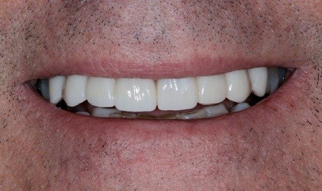 Healthy happy smile after restorative dentistry