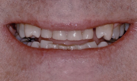 Worn and damaged teeth before restorative dentistry