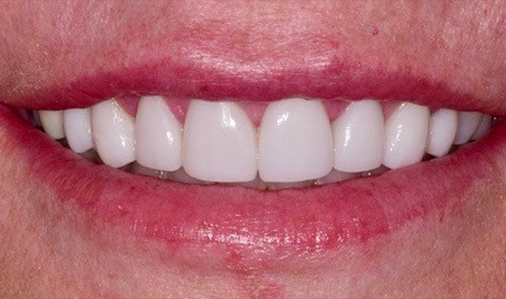 Healthy beautiful teeth and gums after cosmetic dentistry