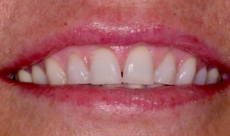 Worn teeth and gummy smile before cosmetic dentistry
