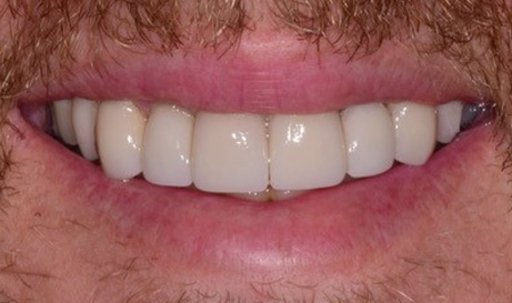 Healthy attractive smile after restorative dentistry