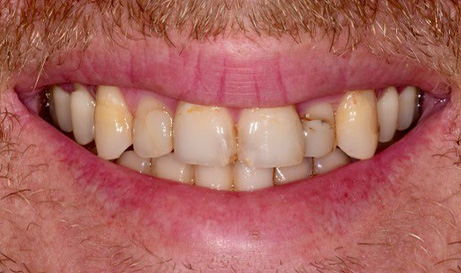 Decayed and discolored teeth before restorative dentistry