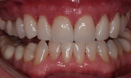 Attractive and healthy smile after restorative dentistry