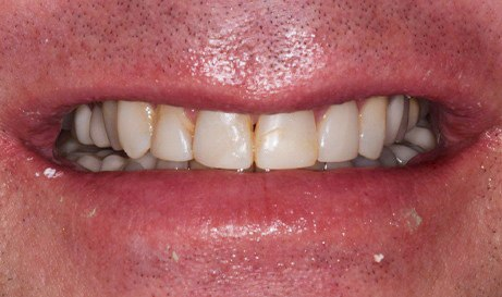 Decay and dental discoloration before restorative dentistry