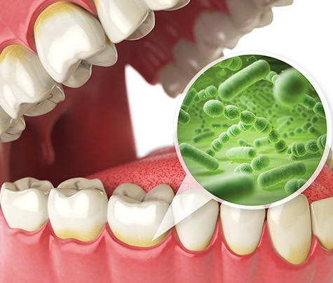 Animated smile with zoom in view of oral bacteria before periodontal therapy