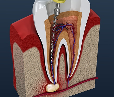 Animated root canal therapy treatment