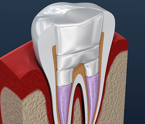 Animated tooth after root canal treatment