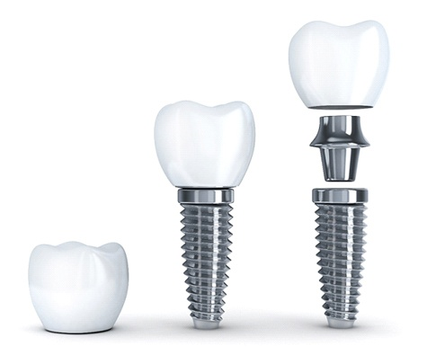 Illustration of single tooth dental implants in Park Cities