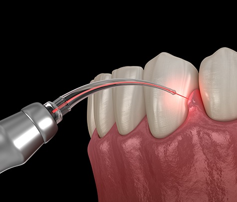 Animated laser dentistry treatment procedure